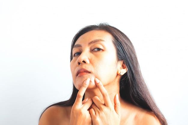 にきびを持つ40代アジア女性。美しさと健康の概念