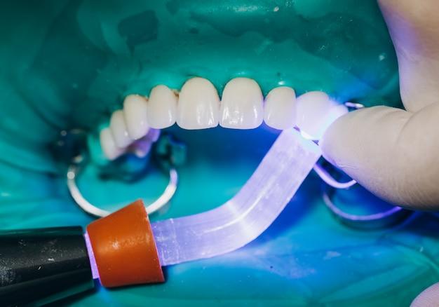 セラミック製フロントクラウン、8ユニットの歯科用ベニア