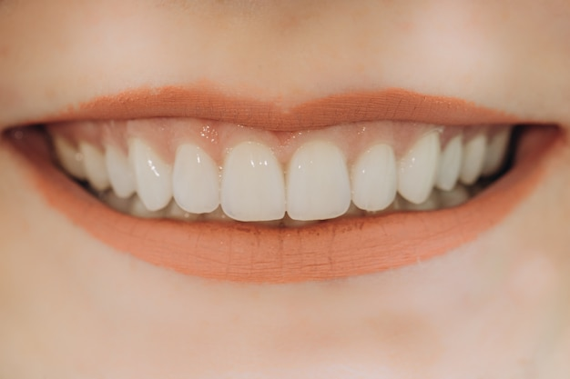 完成したセラミックフロントクラウン。 8ユニットの歯科用ベニア。