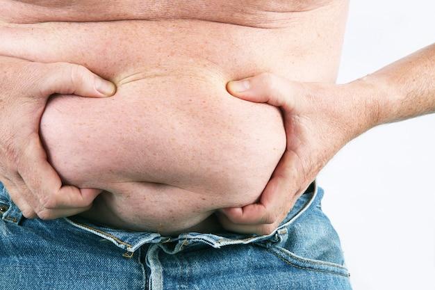明らかな肥満を伴う男性の腹部