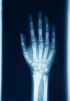 Оригинальная рентгенография человеческой руки