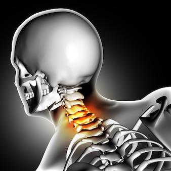 首の痛みとスケルトン