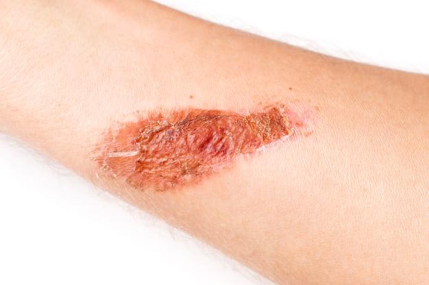 白い背景の上の手の皮膚に干し傷