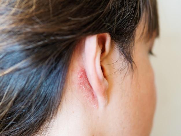 耳の後ろの皮膚を刺激する。薄片状の肌を持つ男。アレルギーまたは真菌病