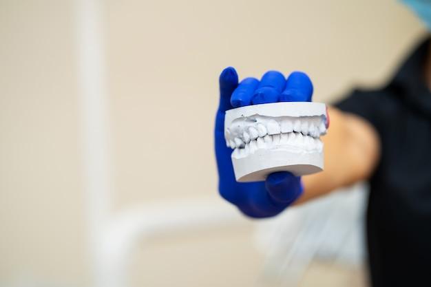 Красивая девушка профессиональный врач стоматолог ортодонт показывает гипсовый слепок челюсти