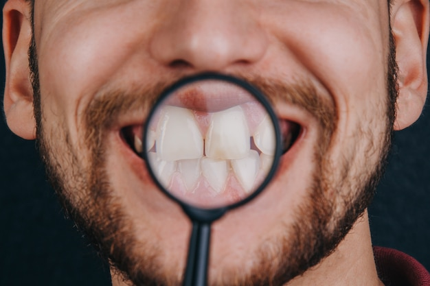 虫眼鏡の下の歯。口ひげのクローズアップを持つ男の肖像。