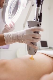クリニックで女性患者の皮膚にレーザー脱毛を行う医師