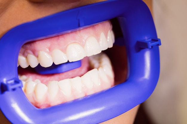 Пациентка, получающая лечение зубов