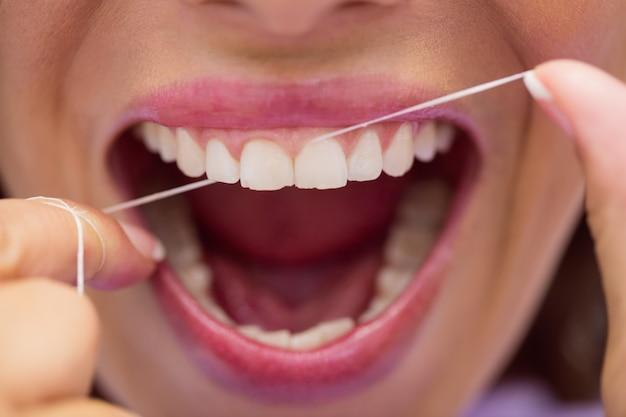Женский пациент зубной нитью зубы