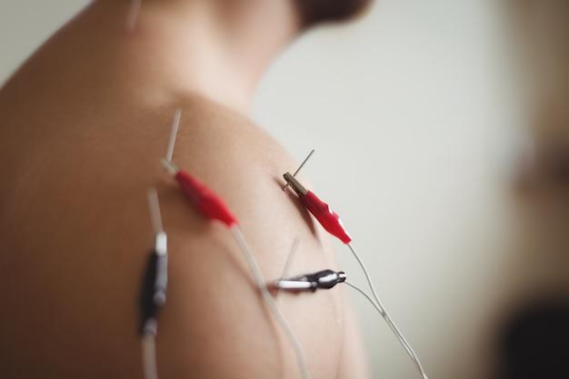 Крупный план пациента, получающего электро сухую иглу