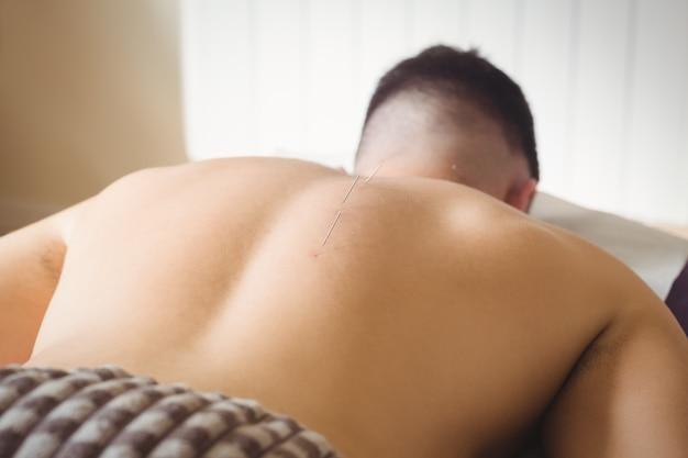 患者の背中に乾いた針刺し