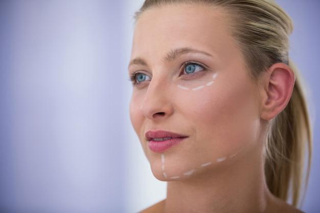 美容治療のために描かれたマークを持つ女性
