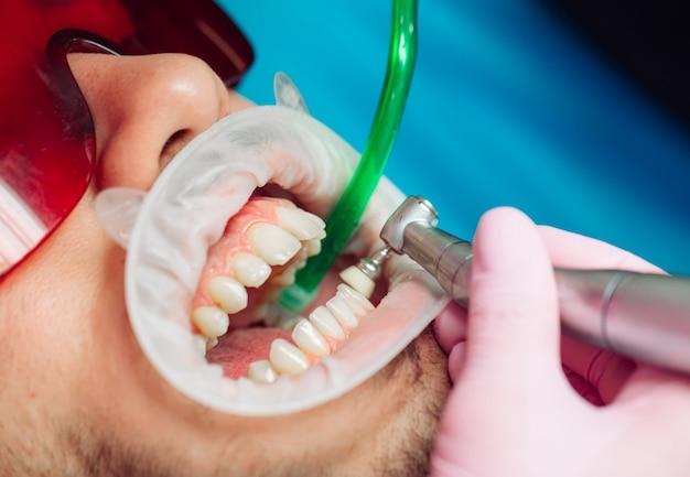 Профессиональная чистка зубов, стоматолог очищает зубы пациента мужского пола.