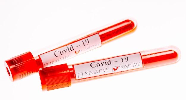 試験管内のコロナウイルスの陽性血液検査。