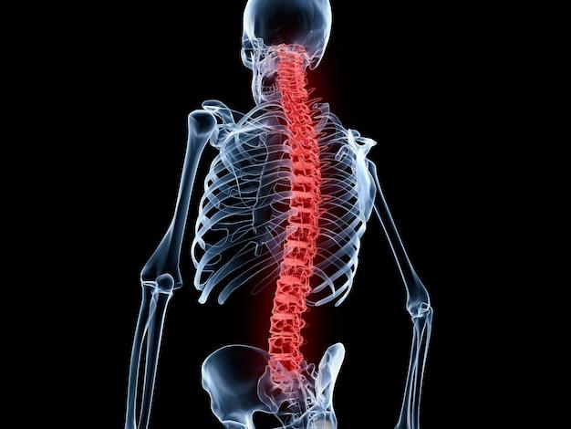 背中の痛み、背骨