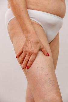 白いパンツの高齢女性は、明るい背景にセルライトと静脈瘤を示しています。