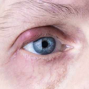 感染した化膿性の目。目の感染症を閉じる