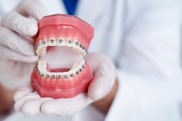 歯列矯正医は、歯のブレースのシステムがどのように配置されているかを示します