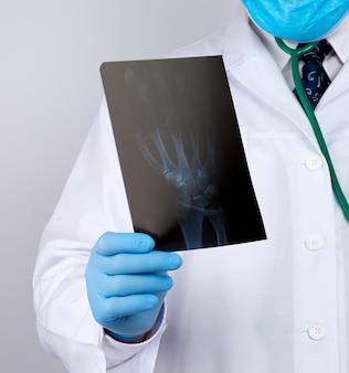 Доктор в белом халате и синих латексных перчатках держит рентгеновский снимок руки человека и проводит визуальный осмотр