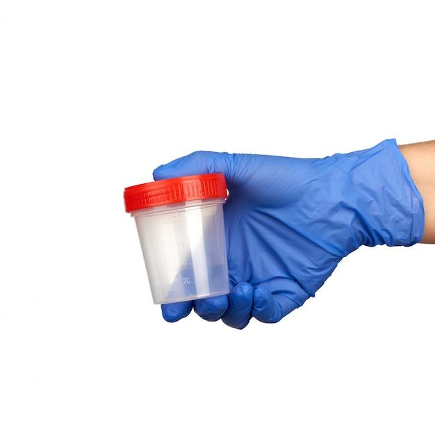 Рука держит прозрачную пластиковую банку с красной крышкой для анализов мочи, часть тела одета в синие медицинские стерильные перчатки