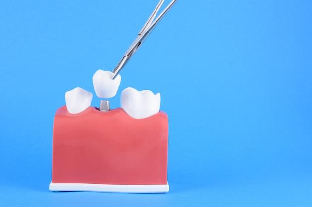 偽口腔歯科医ブルー