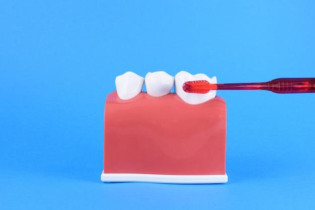 歯ブラシで青の誤った口