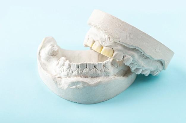 Стоматологическая гипсовая повязка, слепки человеческих челюстей и зубов. зубной гипс для изготовления зубных протезов, брекетов или вставных зубов. концепция стоматологии и ортодонтии.