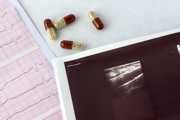 Кардиограмма с узи или узи сосудов головного мозга и с таблетками крупным планом.