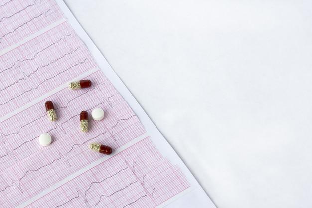 Кардиограмма с таблетками, таблетки на белом столе, вид сверху