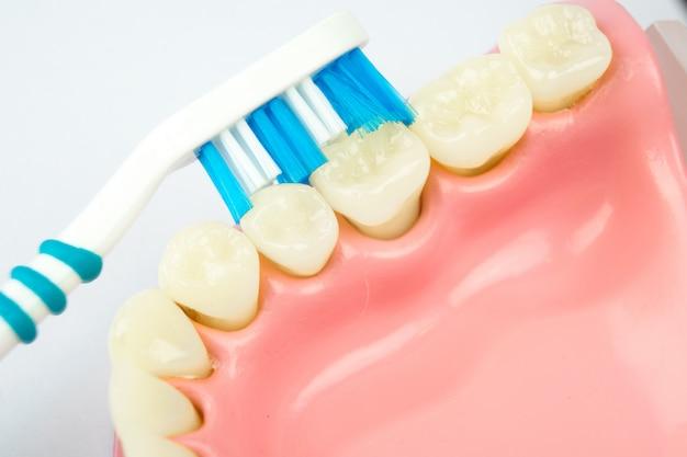 白い背景の上の歯科用義歯