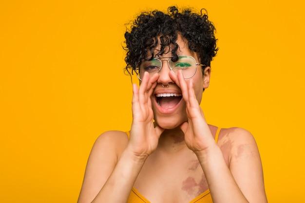 皮膚のあざの叫びを持つ若いアフリカ系アメリカ人女性は前に興奮しています。
