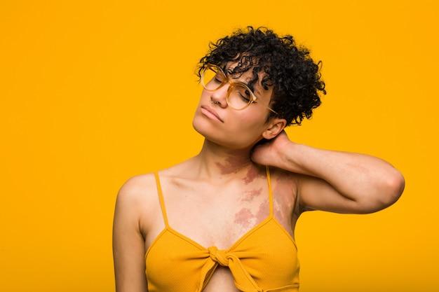 座りがちな生活のため首の痛みに苦しんでいる肌のあざを持つ若いアフリカ系アメリカ人女性。