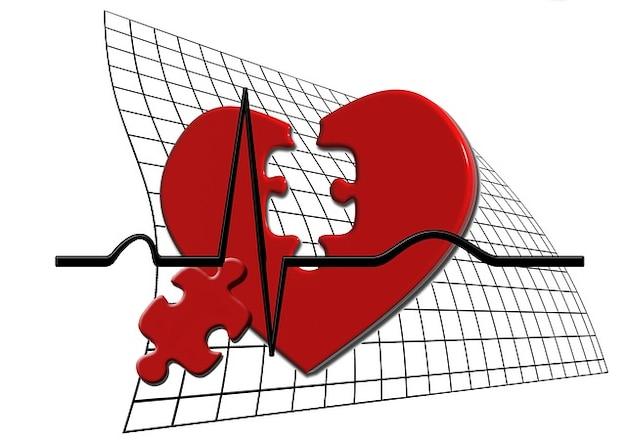 パルス祝福カーブパズル心電図一部の心臓