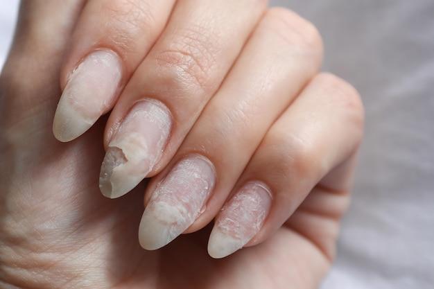 シェラック使用後の爪の損傷。