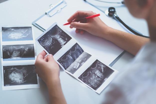 医師は、健康診断と相談中に超音波検査後に患者の超音波画像を調べます