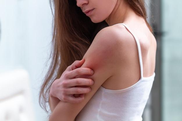 彼女の肌のかゆみに苦しみ、かゆみのある場所を掻く若い女性。