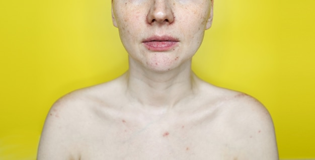 血管皮膚の黄色の壁に問題がある認識できない女性。にきび治療。にきび、クーペロース、酒さを持つ女性の顔をクローズアップ。美容とスキンケアのコンセプトです。
