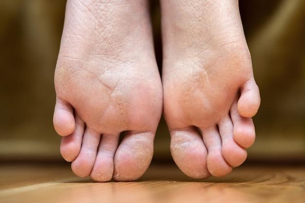 Крупным планом подошвы ног женщины с сухой потрескавшейся кожей