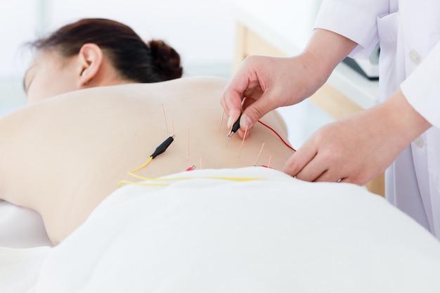Рука доктора выполняя иглоукалывание терапию. азиатская женщина проходит курс лечения иглоукалыванием с помощью линии тонких игл, введенных в кожу ее тела в клинике