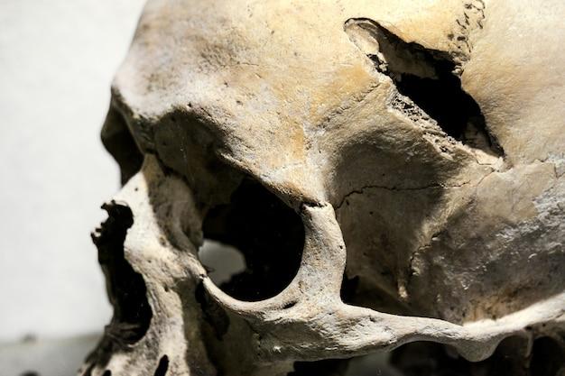外傷後の人間の頭蓋骨。人間の頭蓋骨の穴