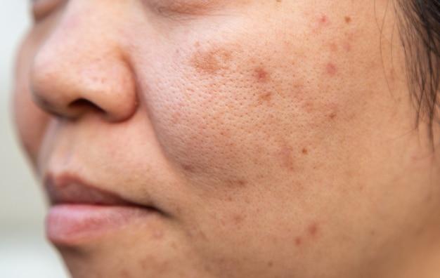 問題顔の皮膚はにきびや傷です。