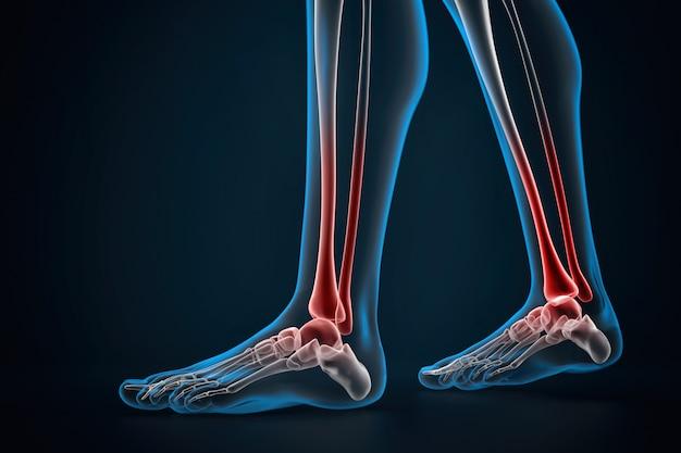 足首の関節炎