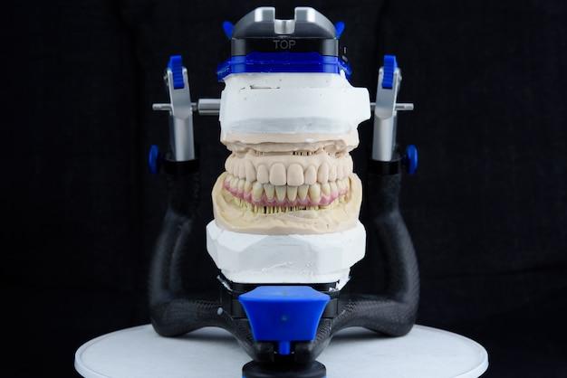 Артикулятор в стоматологической лаборатории