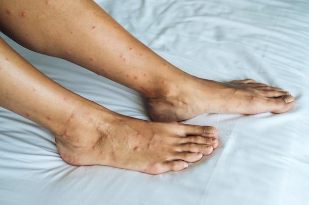 多くの赤い斑点と砂フライ刺されによる傷跡がある女性の足