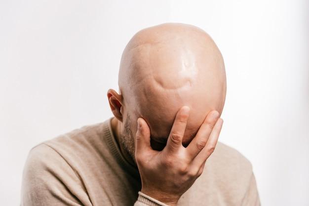 生命の脳腫瘍に苦しんでいるハゲ男の心理的ストレス。がんの脳神経外科手術後の悲痛な男性の感情。腫瘍生存者患者。化学療法と照射ヘッドマーク