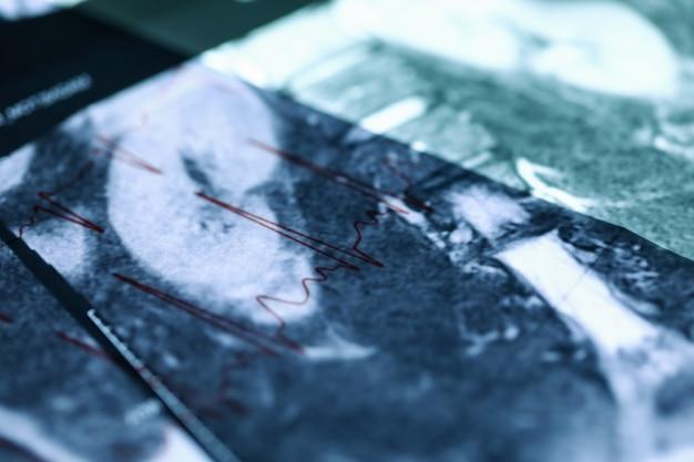 Мрт изображение, лежащее на кардиограмме крупным планом