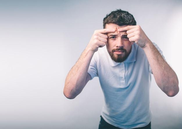 にきび治療。にきび男がニキビを絞って顔からニキビを取り除きます。男の肌ケアのコンセプトです。ニキビニキビスポットスキンケアビューティーケア男性皮膚の問題のある顔を押します。