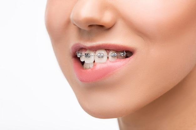 Красивая молодая женщина с брекетами зубов