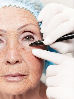 Хирург делает проверку кожи на женщину среднего возраста перед пластической операцией