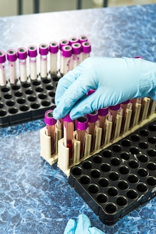 Пробирка с анализом крови в руке с перчаткой